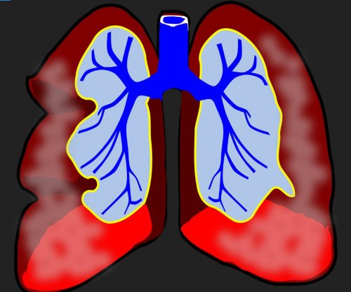 Common genetic link found in lung conditions, study finds
