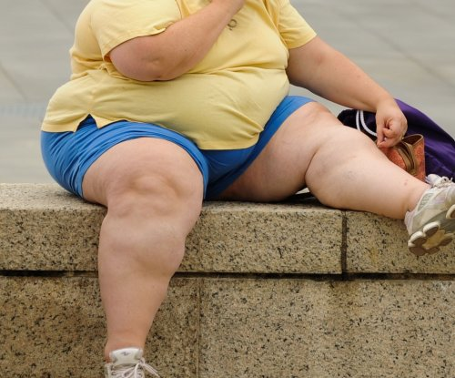 Study: Obesity takes eight years off your life