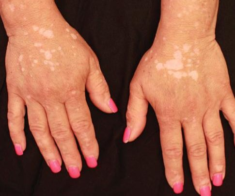 Rheumatoid arthritis treatment returns pigment to vitiligo patient's skin