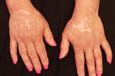 Rheumatoid arthritis treatment returns pigment to vitiligo patient's skin