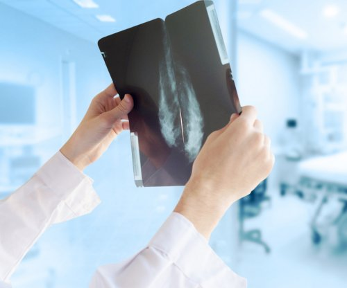 Breast tumor size has shrunk as mammogram becomes more widespread