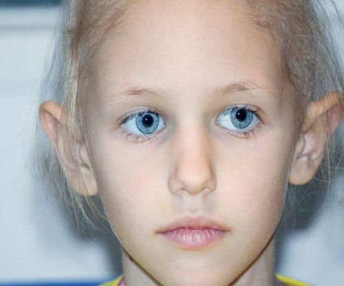 Chemotherapy in childhood may leave lasting effects on memory