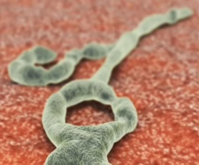 Slight genetic tweak could make Ebola harmless to humans