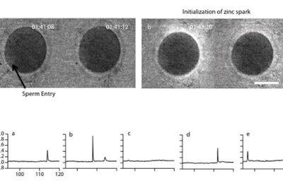 Human eggs celebrate insemination with flash of zinc fireworks