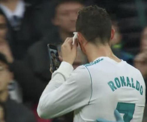 Cristiano Ronaldo gets cut, uses phone to check out facial injury