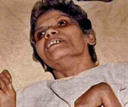 Indian nurse who spent 42 years in coma after Mumbai rape dies
