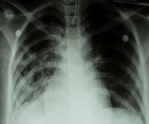 Global efforts to combat TB epidemic falling short