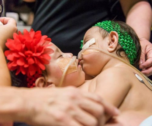 Twins joined at chest successfully separated at Texas hospital