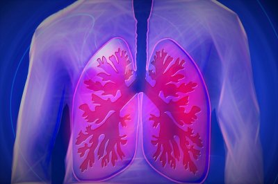 Scientists spot early coronavirus markers in lungs of patients