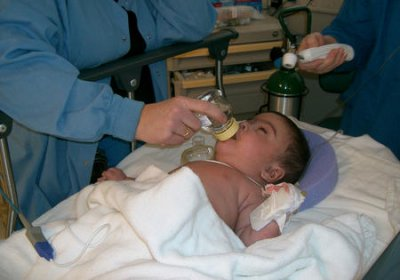Slight increase in U.S. out-of-hospital births from 2011-2012