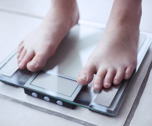 High obesity rates in United States remain steadily high