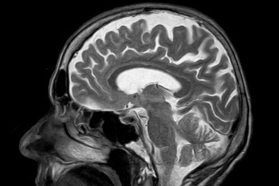 Serious COVID-19 might cause brain damage, study finds