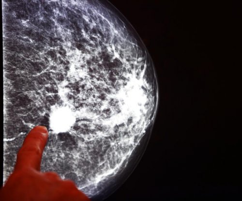Optical scanner could allow real-time breast cancer screening