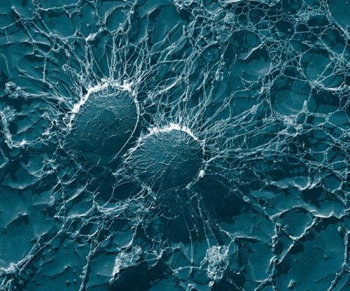 New antibiotics have a unique way of killing bacteria