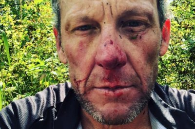 Lance Armstrong takes tumble during Colorado cycling crash, scrapes face