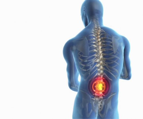 Study: More than half of people in U.S. plagued by back, leg pain