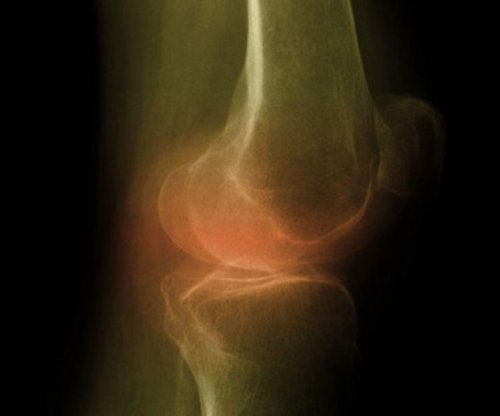 Losing weight may help reduce arthritic knee pain, study says