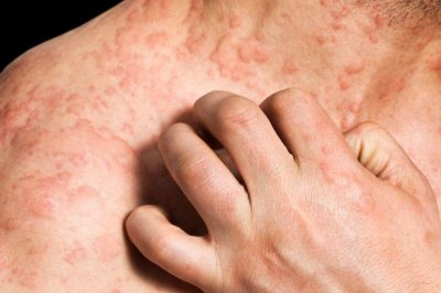 Severe eczema linked to increased risk for heart attack, stroke