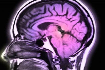 Genetic analysis reveals brain changes that lead to mental illness