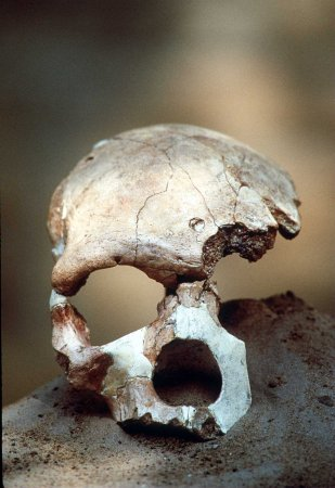 Auction house won't sell Civil War soldier's skull amid protests