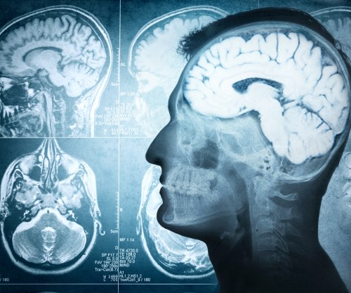 Study identifies brain process vital to short-term memory