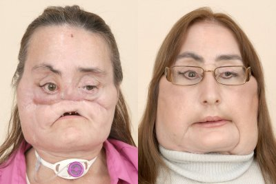 Face transplant recipient Connie Culp dead at 57