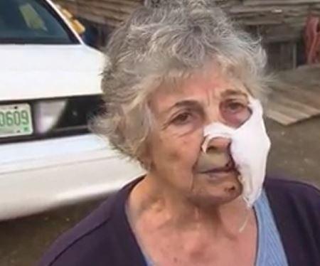 New Hampshire woman, 80, survives rabid bobcat attack