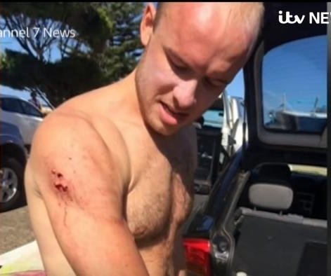 Surfer punches shark to escape attack at Australian beach