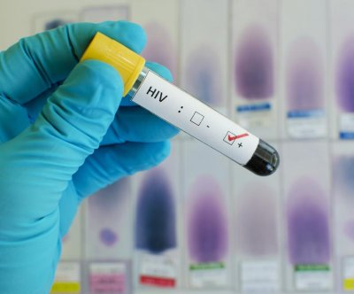Study: HIV does not cause AIDS, human immune cells do