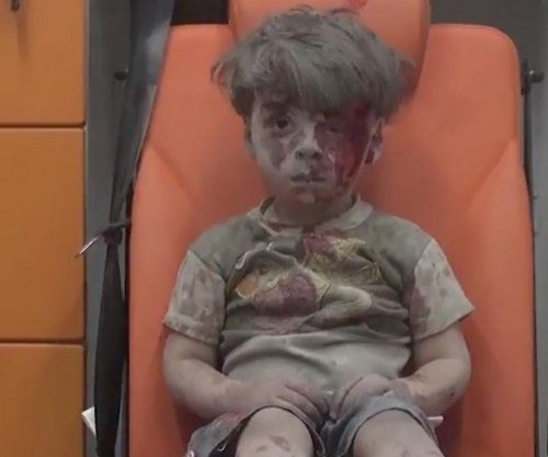 Video, image of wounded boy in Aleppo captures world's attention