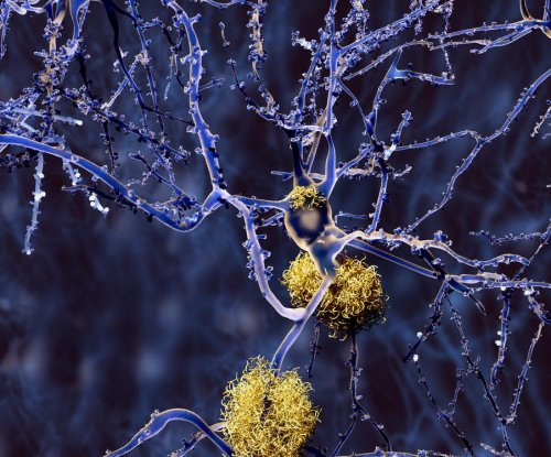 Drug appears to clear protein plaques in Alzheimer's patients' brains