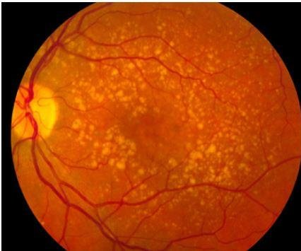 Retinal patch with stem cells treats macular degeneraiton