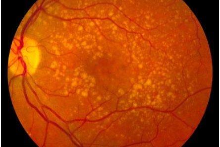 Retinal patch with stem cells treats macular degeneraiton