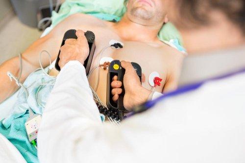 Most patients do not survive cardiac arrest outside hospitals
