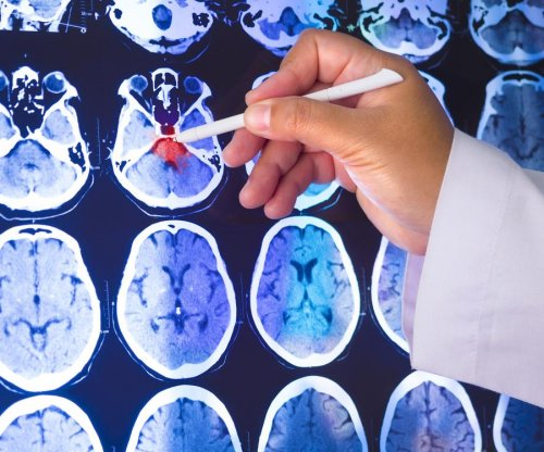 Consortium of drug companies to speed up Parkinson's research