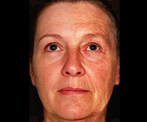 'Freckle' gene might make you look older