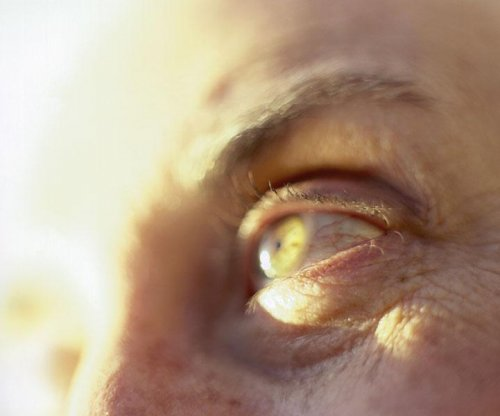 Could 'zaps' to the brain help fight glaucoma?
