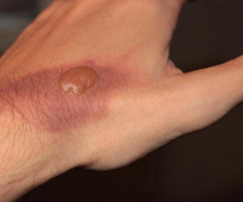 Researchers develop new method for healing burns