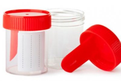 Gene-based urine test detects urinary tract cancers