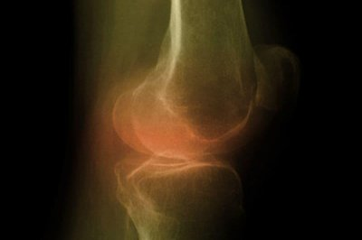 Uncontrolled blood pressure may indicate high lead levels in shin bones