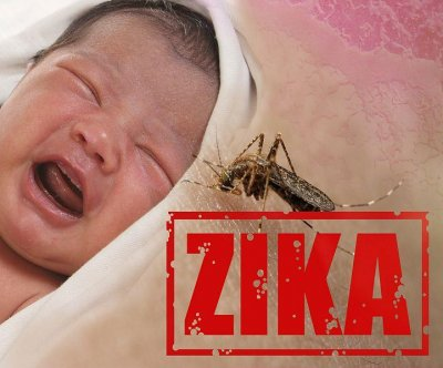 Doctors spot new vision problems in babies struck by Zika