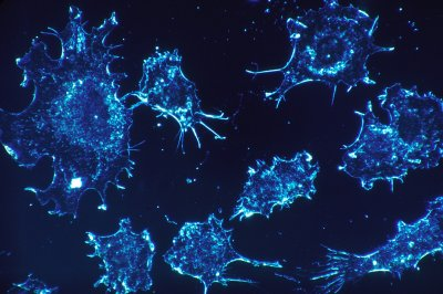 New drug to treat cancer puts cells to sleep permanently