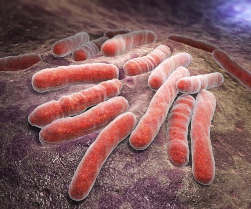 White House releases plan to combat multidrug-resistant TB
