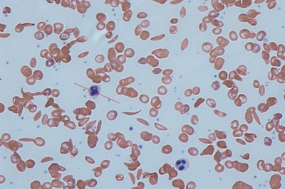 Gene mutation finding may lead to treatment for sickle cell, other blood disorders
