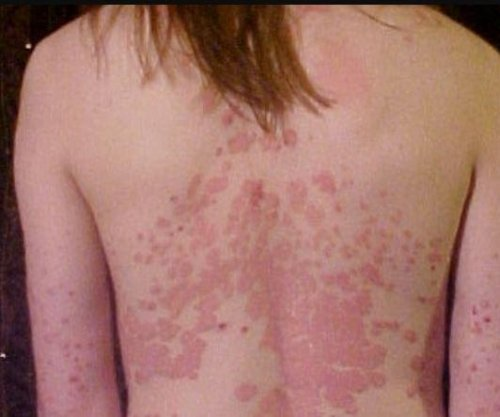 Compound treats psoriasis, may curb autoimmune diseases, researchers say