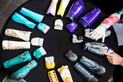 Clinical trial to offer free 3D-printed prosthetic arms to children