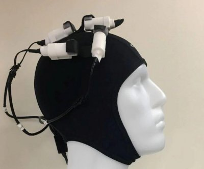 'Brain stimulator' may boost stroke recovery