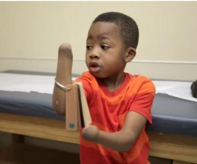 Doctors complete first bilateral hand transplant on 8-year-old