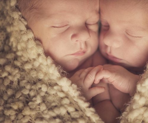 8-day-old conjoined twins separated in Switzerland