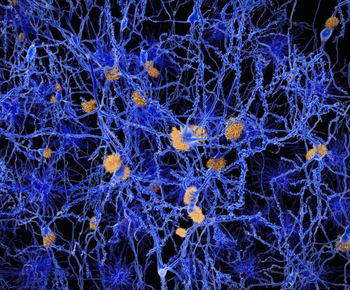 Infection may spur build-up of Alzheimer's-causing protein in brain